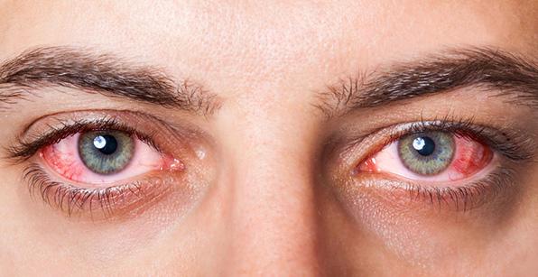 Démangeaisons et yeux qui piquent (que faut-il faire ?)