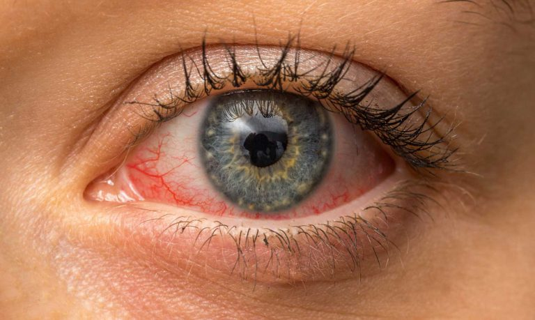 Read more about the article Qu'est-ce que la cataracte? et que faut-il savoir sur la chirurgie?