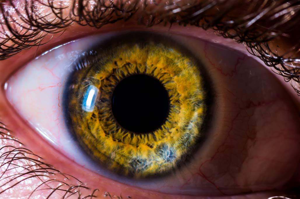 You are currently viewing Est ce que la couleur des yeux peut changer ?