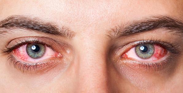 Read more about the article Symptômes, causes et traitements de la conjonctivite