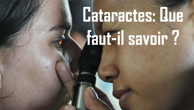 Que faut-il savoir sur la cataracte ?
