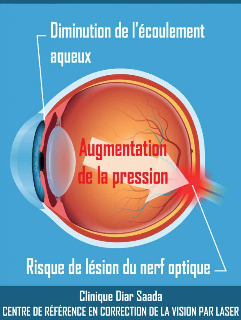 Hypertension oculaire: Quelles sont les causes