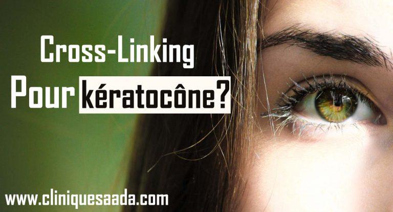 Cross-Linking pour kératocône?