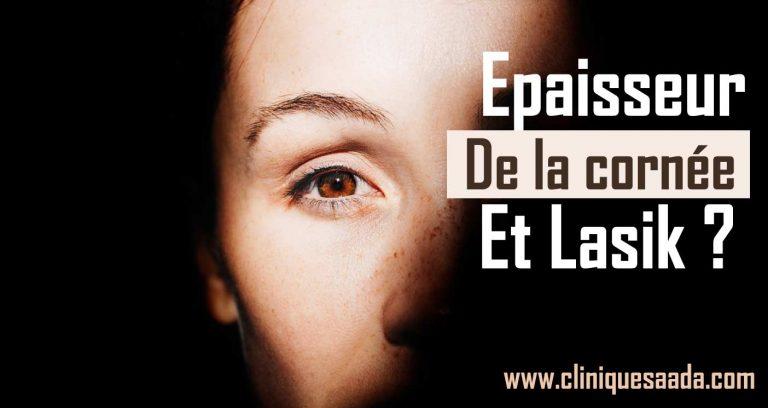 Read more about the article Épaisseur de la cornée et LASIK ?