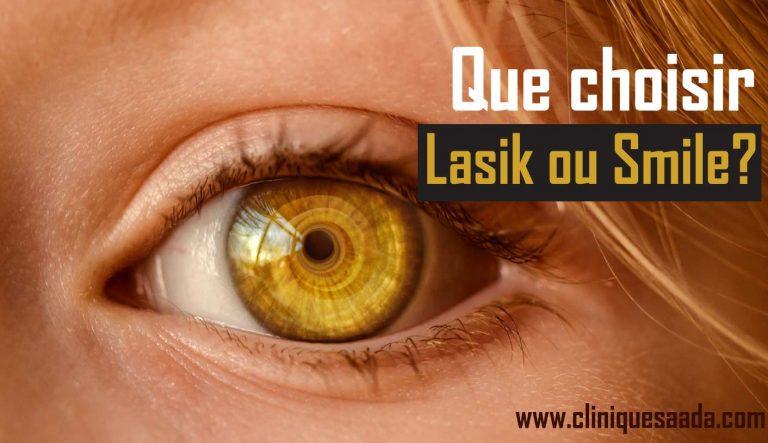 Read more about the article Lasik ou smile ! Que choisir ?
