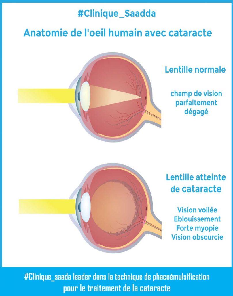 Anatomie de l'œil humain avec cataracte