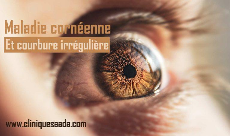 Maladie cornéenne et courbure irrégulière