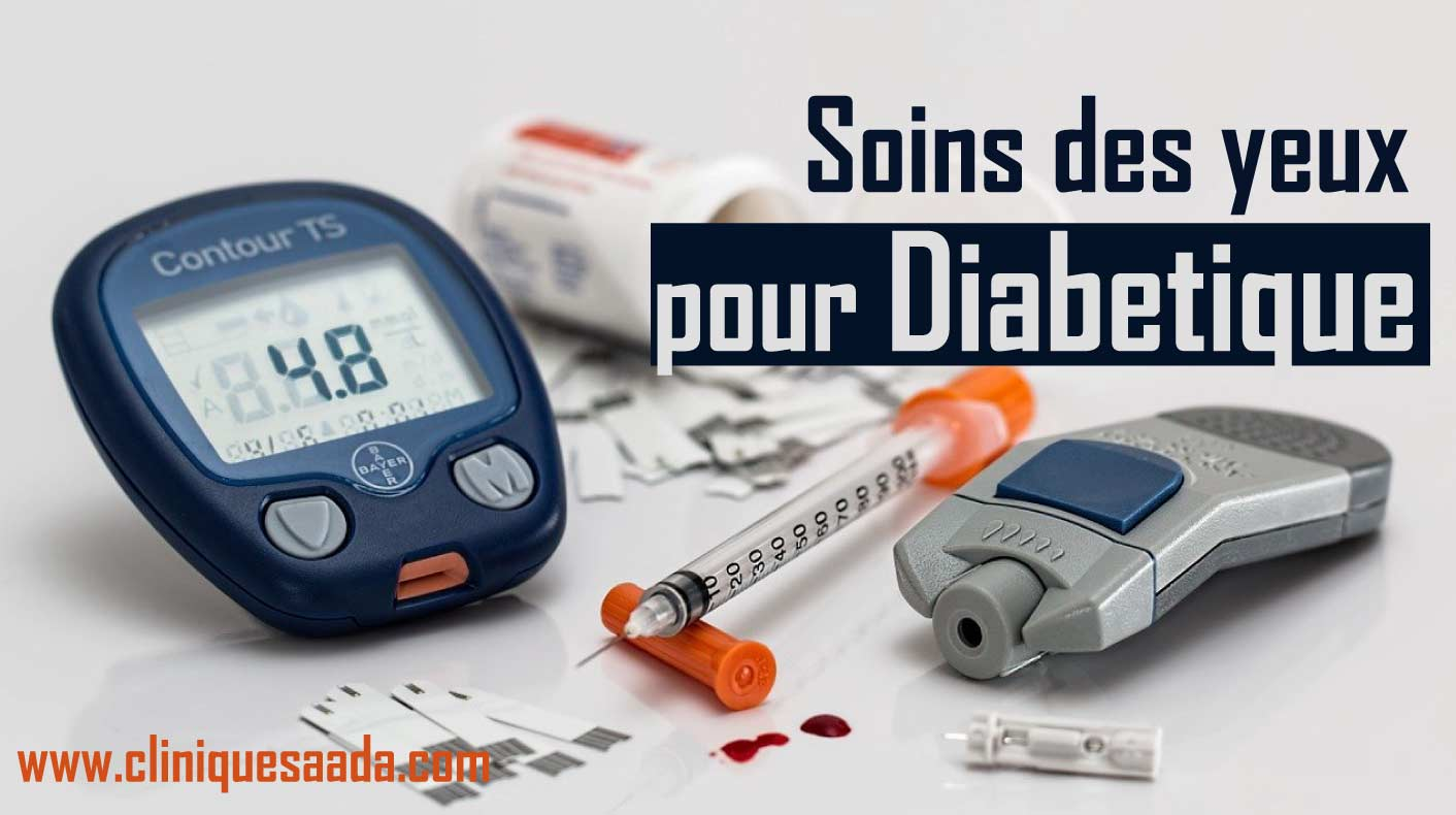 Rétinopathie diabétique et soins des yeux
