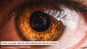 Décollement de la rétine en Algérie : tout savoir