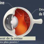 Décollement de la rétine en Algérie (Questions les plus posées)