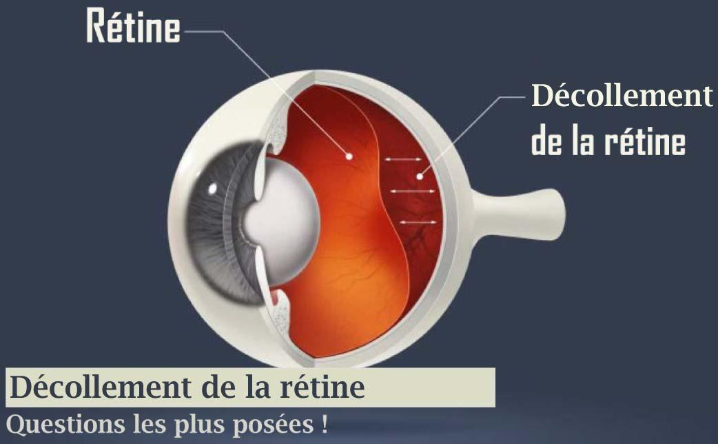 Read more about the article Décollement de la rétine en Algérie (Questions les plus posées)