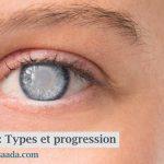 Cataractes : progression, types et facteurs de risque