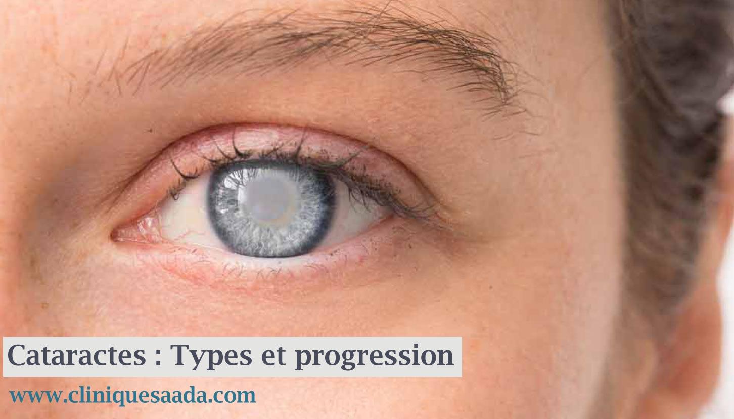 Read more about the article Cataractes : progression, types et facteurs de risque