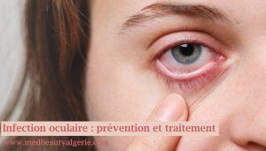 Infection oculaire : prévention et traitement