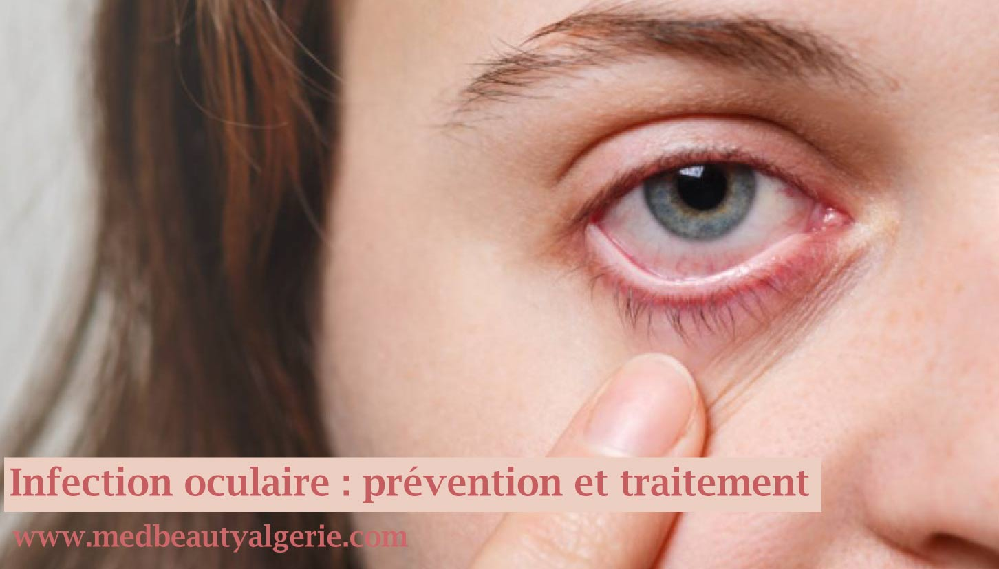 You are currently viewing Infection oculaire : prévention et traitement