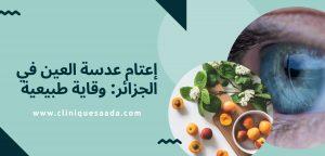Read more about the article إعتام عدسة العين في الجزائر: وقاية طبيعية