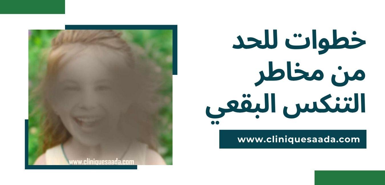 Read more about the article خطوات للحد من مخاطر التنكس البقعي