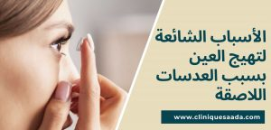 Read more about the article الأسباب الشائعة لتهيج العين بسبب العدسات اللاصقة