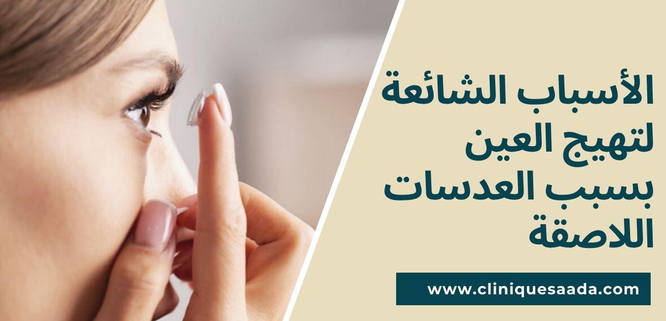 الأسباب الشائعة لتهيج العين بسبب العدسات اللاصقة