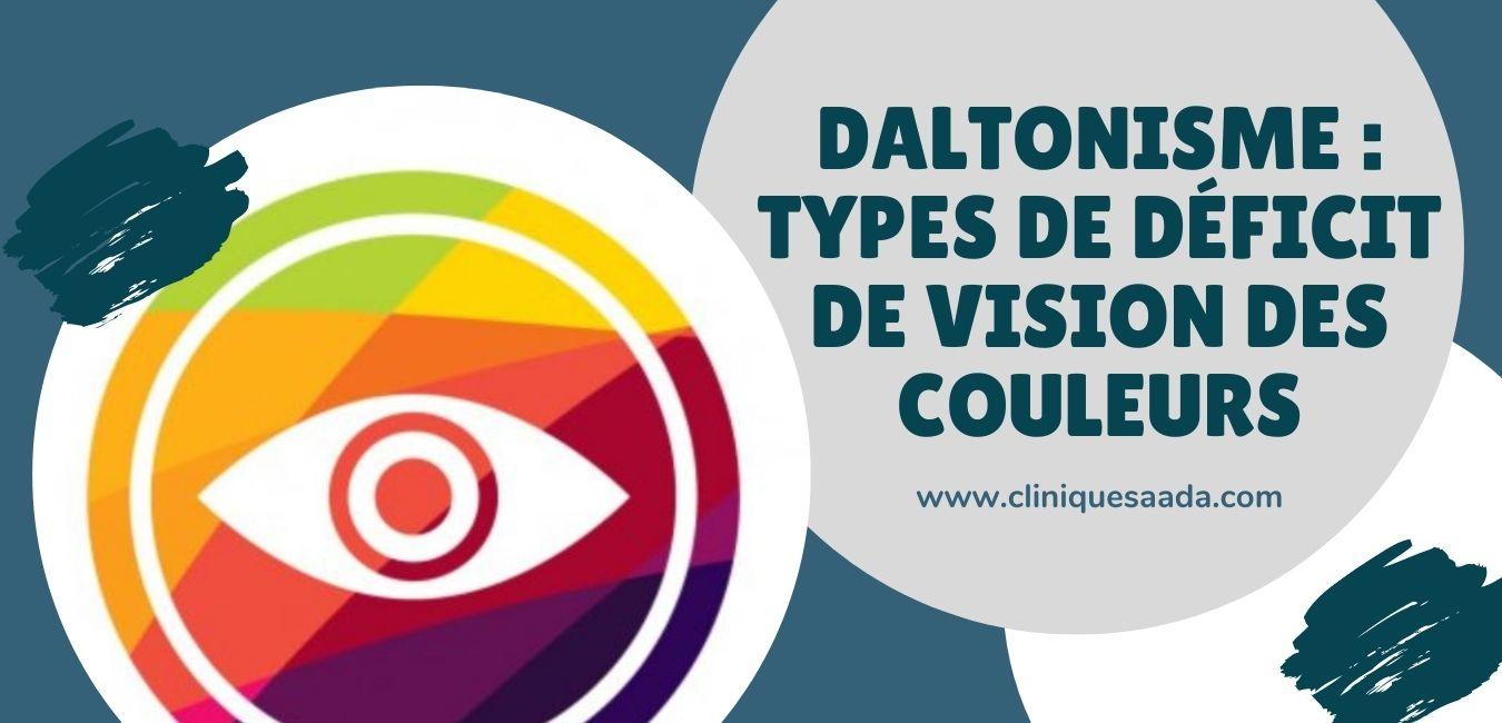 Daltonisme : Types de déficit de vision des couleurs