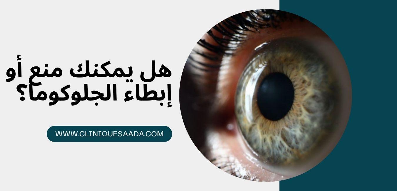 Read more about the article هل يمكنك منع أو إبطاء الجلوكوما؟