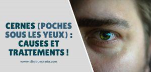 Cernes (poches sous les yeux) : Causes et traitements !