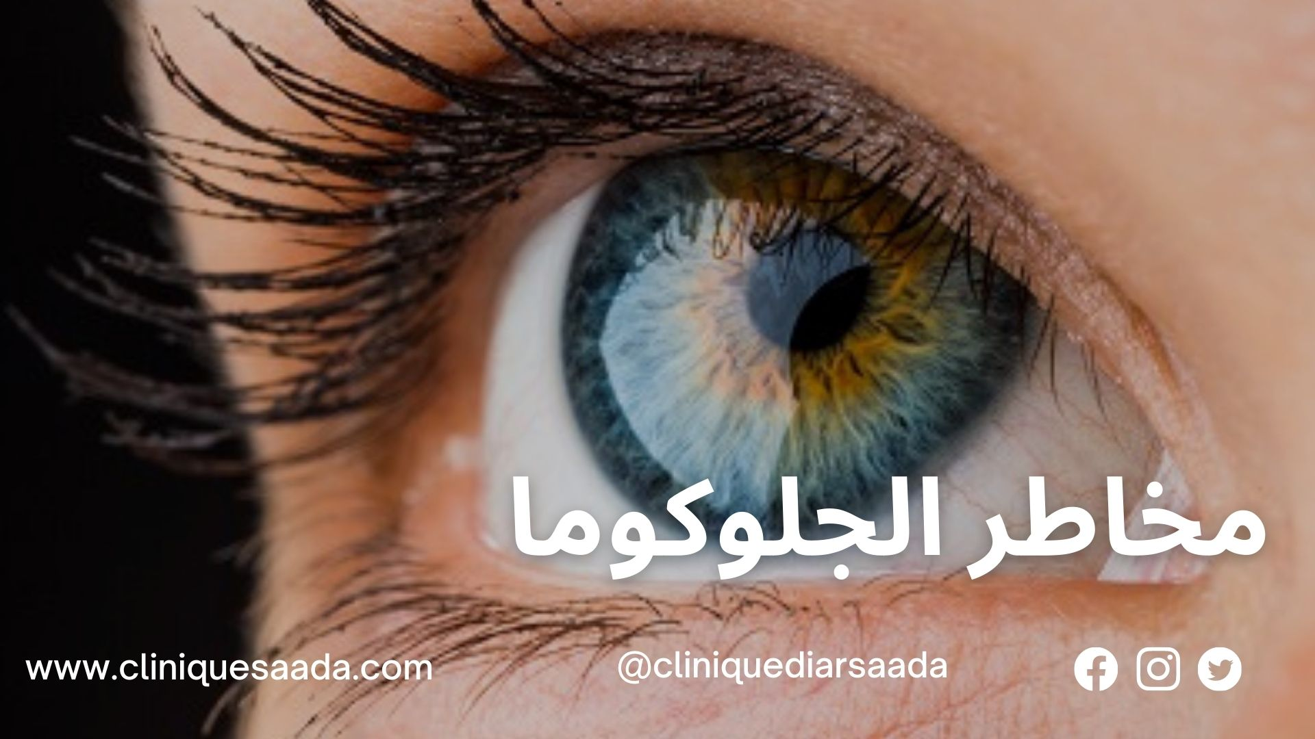 You are currently viewing مخاطر الجلوكوما