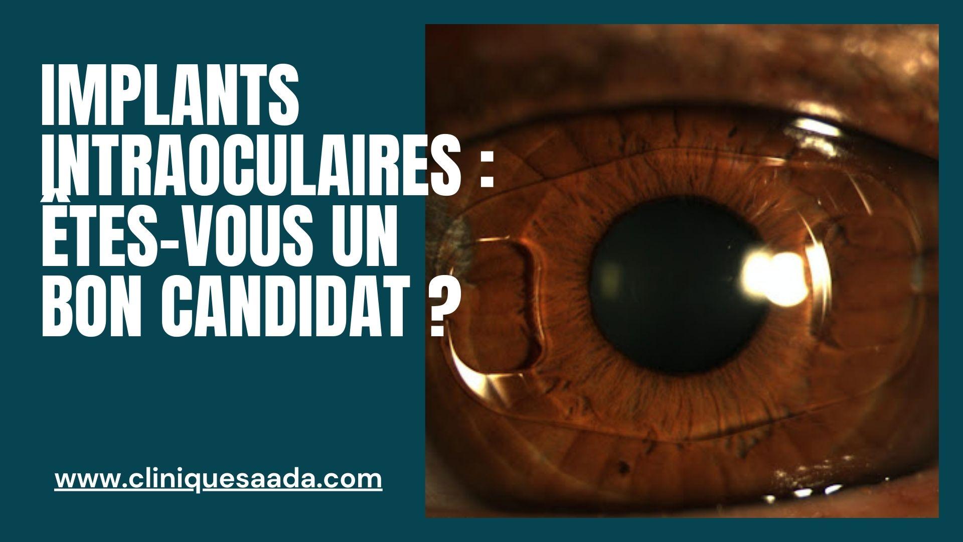 Read more about the article Implants intraoculaires : êtes-vous un bon candidat ?